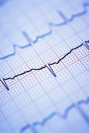 История болезни ибс стабильная стенокардия артериальная гипертензия